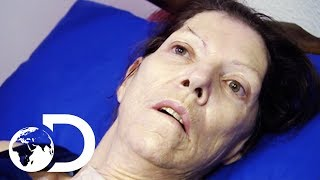 Miracle Drug Wakes Up Woman In A Coma After 2 Years | My Shocking Story