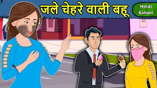 Kahani जले चेहरे वाली बहू: Saas Bahu Ki Kahaniya | Moral Stories in Hindi | Mumma TV Story